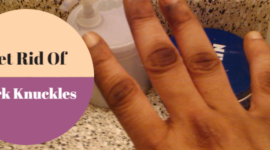 How To Get Rid Of Dark Knuckles