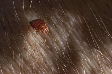 How To Get Rid Of Bed Bugs In Your Hair