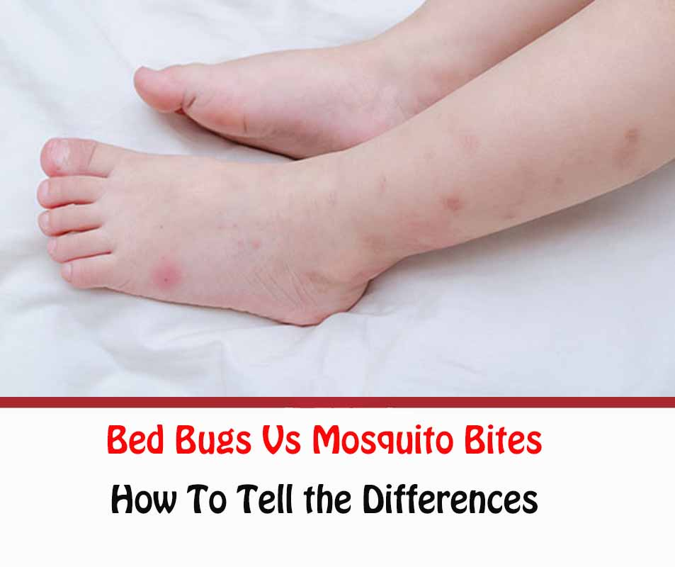 Bed Bugs Vs Mosquito Bites