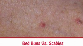 Bed Bugs Vs. Scabies