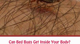 Can Bed Bugs Get Inside Your Body?