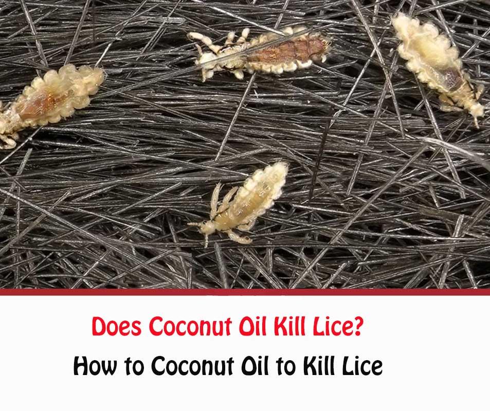 Does Coconut Oil Kill Lice?
