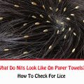 What Do Nits Look Like On Paper Towels