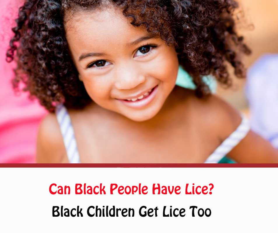Can Black People Have Lice?