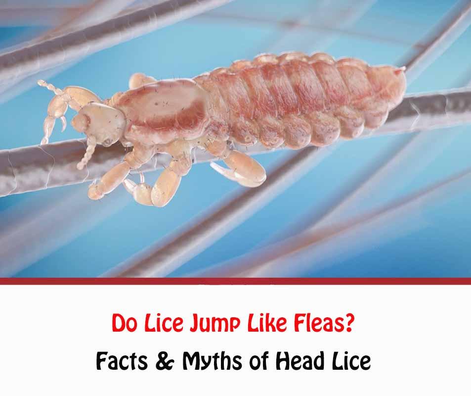 Do Lice Jump?