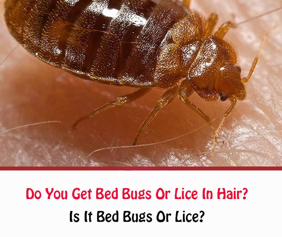 Do You Get Bed Bugs Or Lice In Hair?