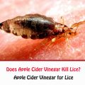 Does Apple Cider Vinegar Kill Lice?