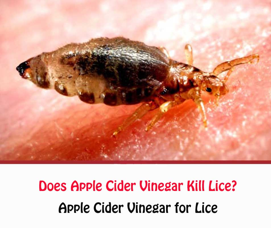 Does Apple Cider Vinegar Kill Lice?