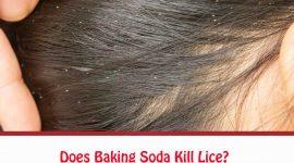 Does Baking Soda Kill Lice?