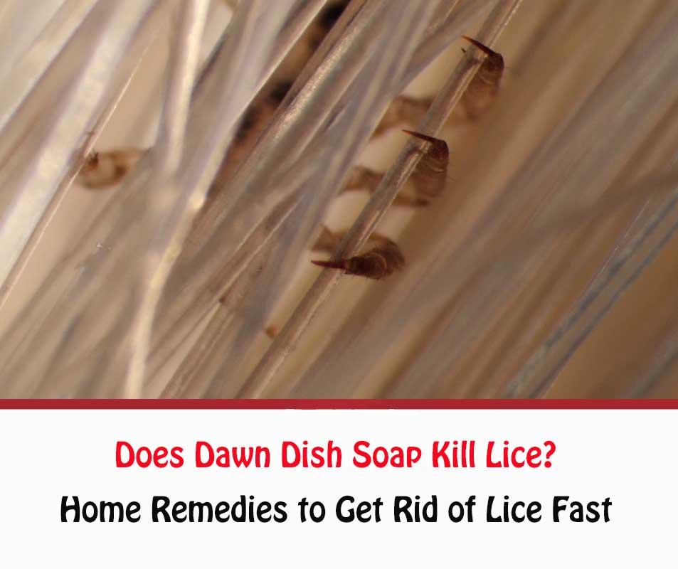 Does Dawn Dish Soap Kill Lice?