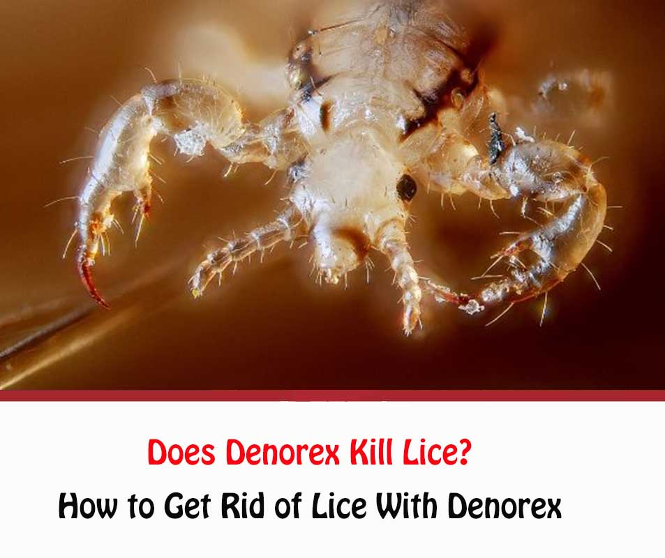 Does Denorex Kill Lice?
