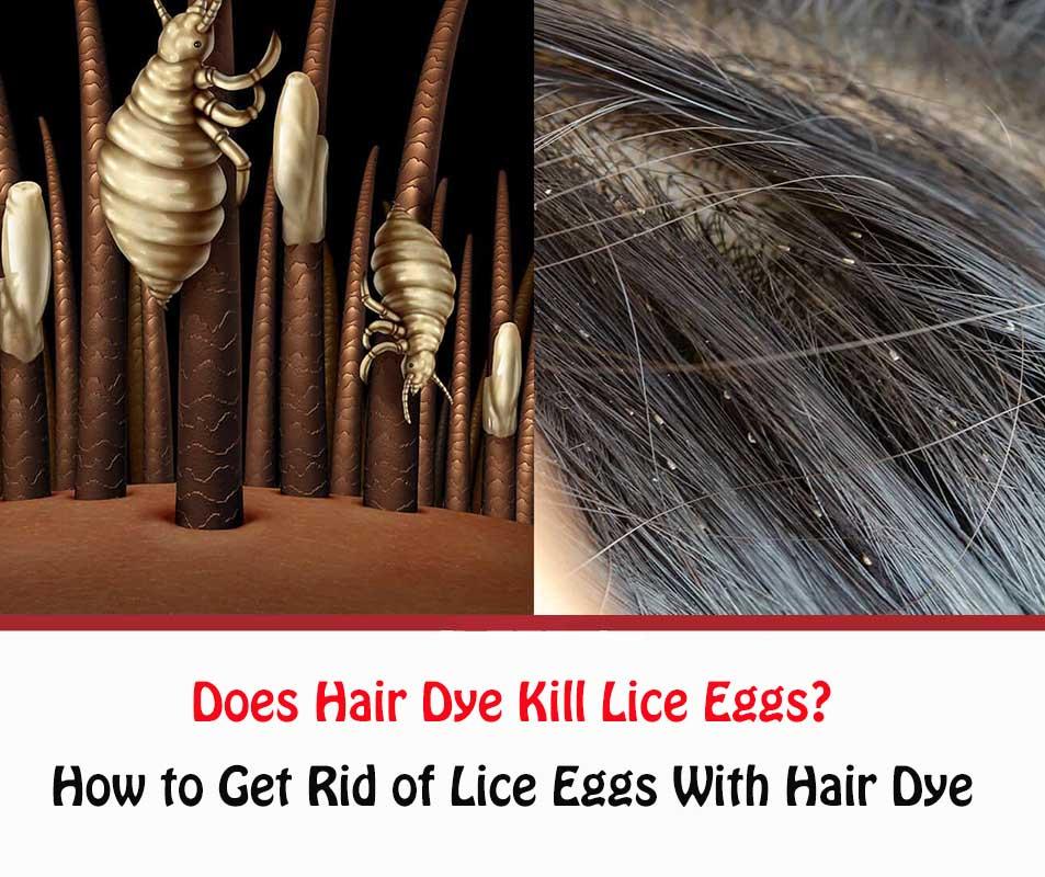 Does Hair Dye Kill Lice Eggs?