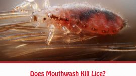 Does Mouthwash Kill Lice?