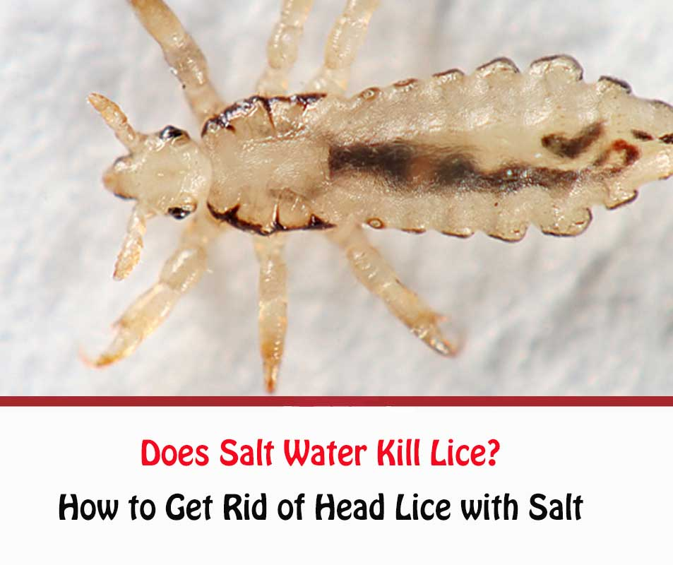 Does Salt Water Kill Lice?