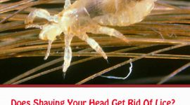 Does Shaving Your Head Get Rid Of Lice?