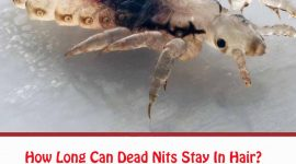How Long Can Dead Nits Stay In Hair?