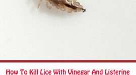 How To Get Rid Of Lice With Vinegar And Listerine?