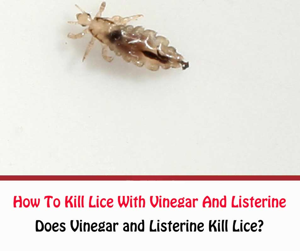 How To Get Rid Of Lice With Vinegar And Listerine
