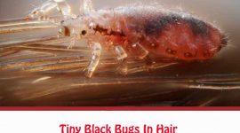 Tiny Black Bugs In Hair