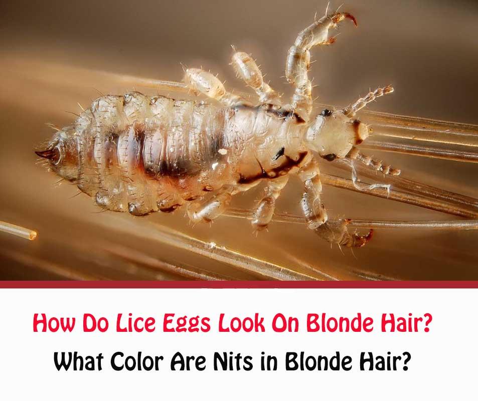 How Do Lice Eggs Look On Blonde Hair?