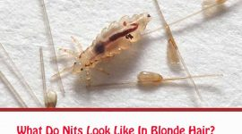 What Do Nits Look Like In Blonde Hair?