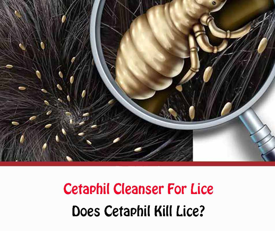 Cetaphil Cleanser For Lice