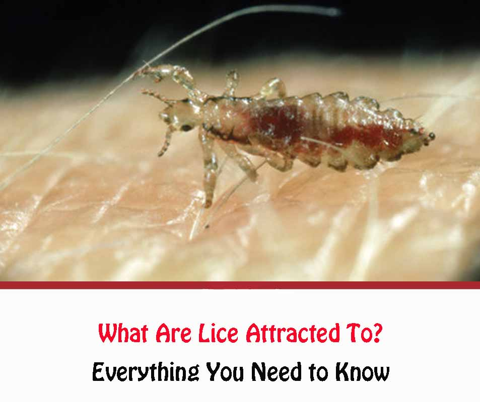What Are Lice Attracted To