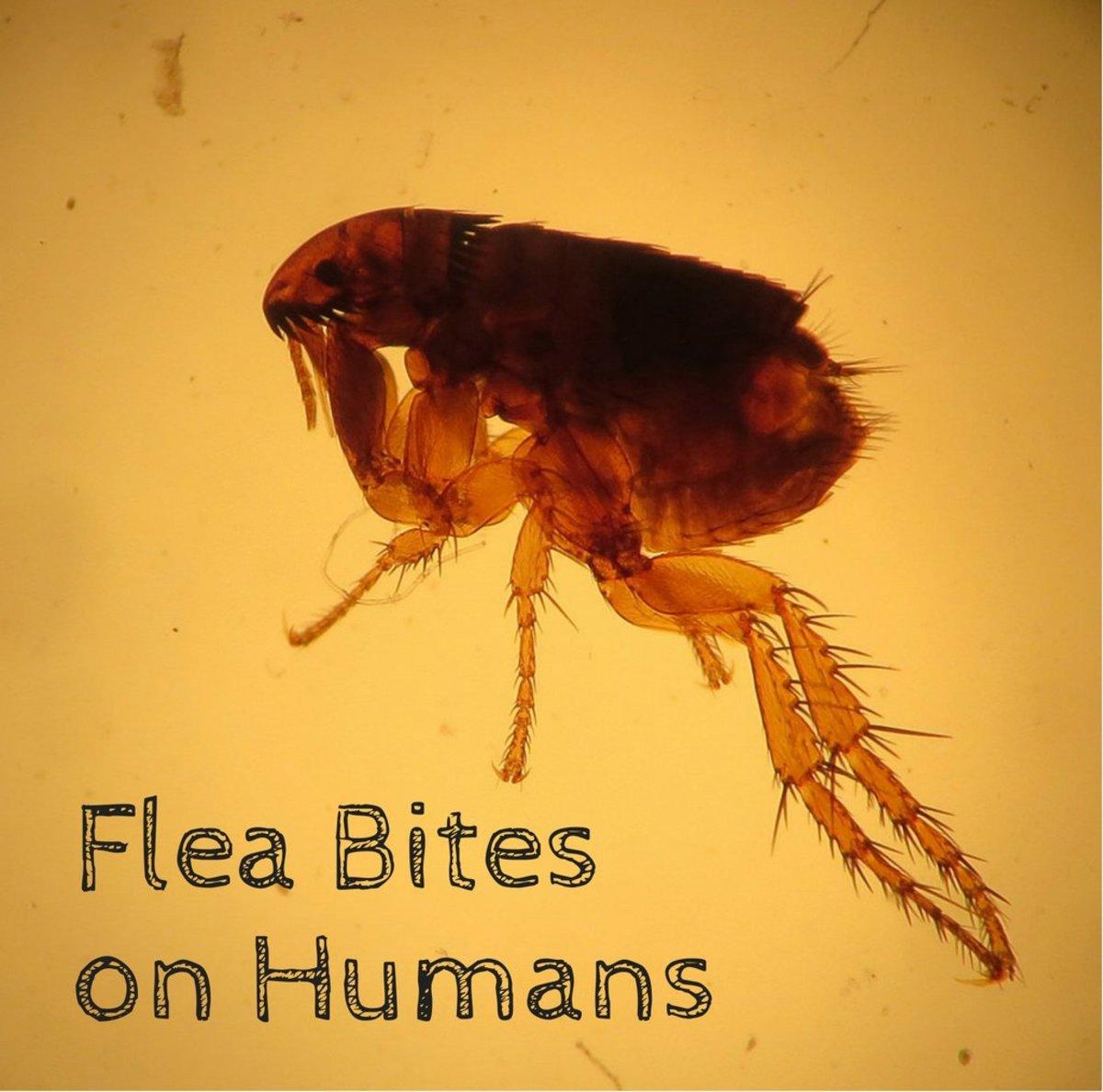 fleas bites on human - Image By dengarden