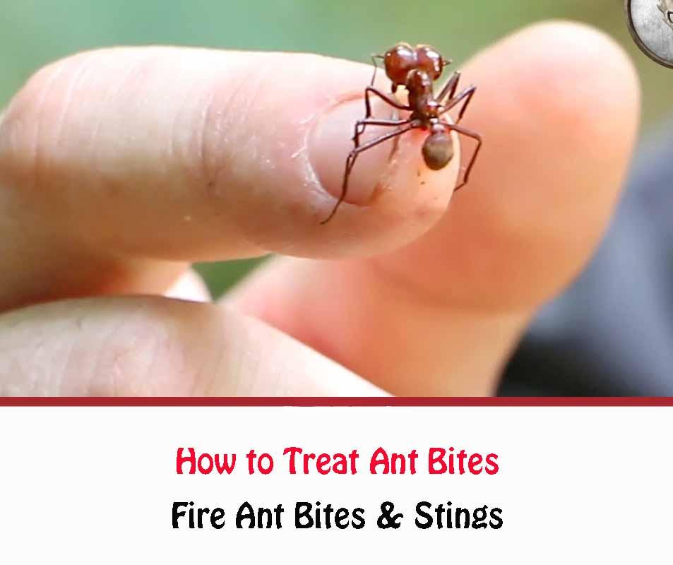 How to Treat Ant Bites