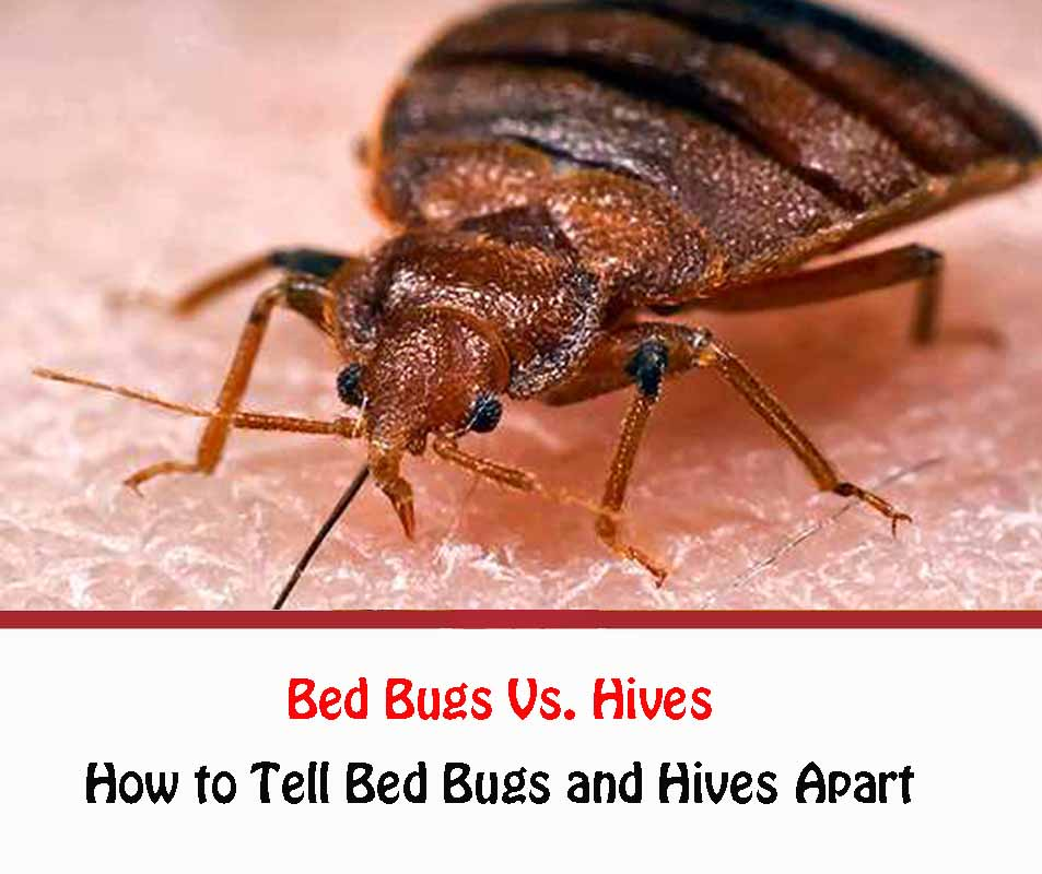 Bed Bugs Vs. Hives