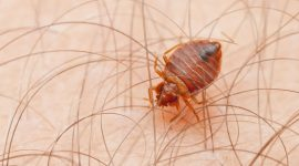 How To Get Rid Of Bed Bugs In Hair?