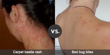 Carpet Beetle Rash Vs Bed Bug Bites