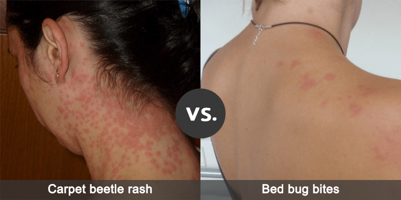 Difference Between Carpet Beetle Rash And Bed Bug Bites