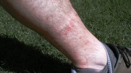 How to Get Rid of Chigger Bites Naturally