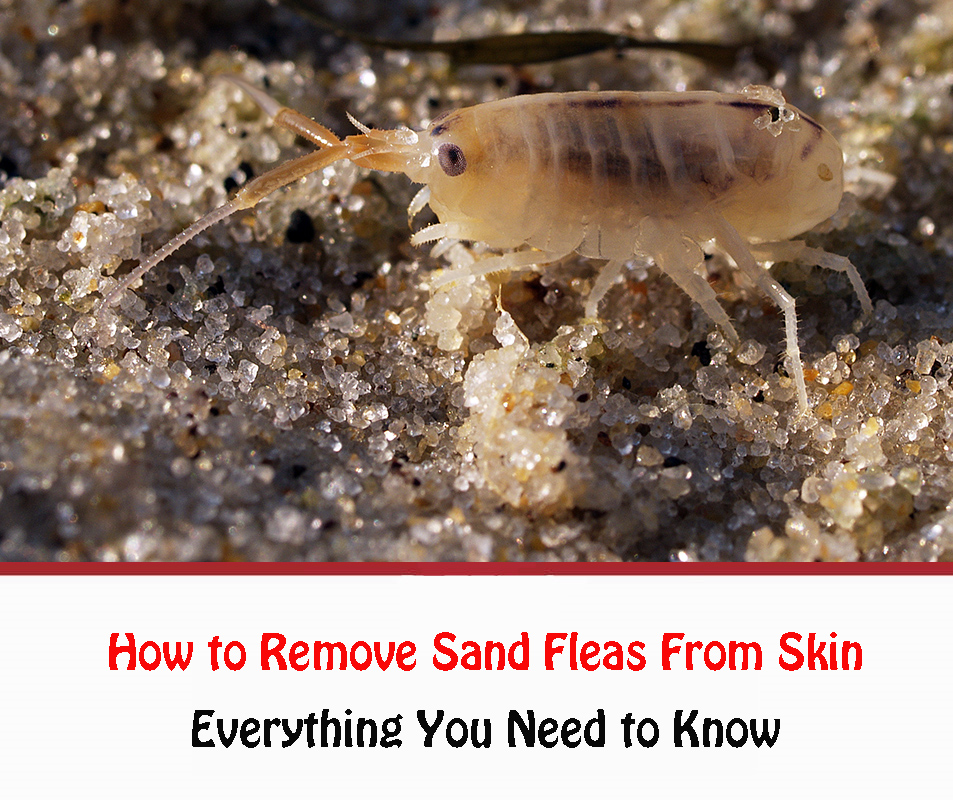 How to Remove Sand Fleas From Skin