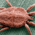How to get rid of chiggers in your home Naturally
