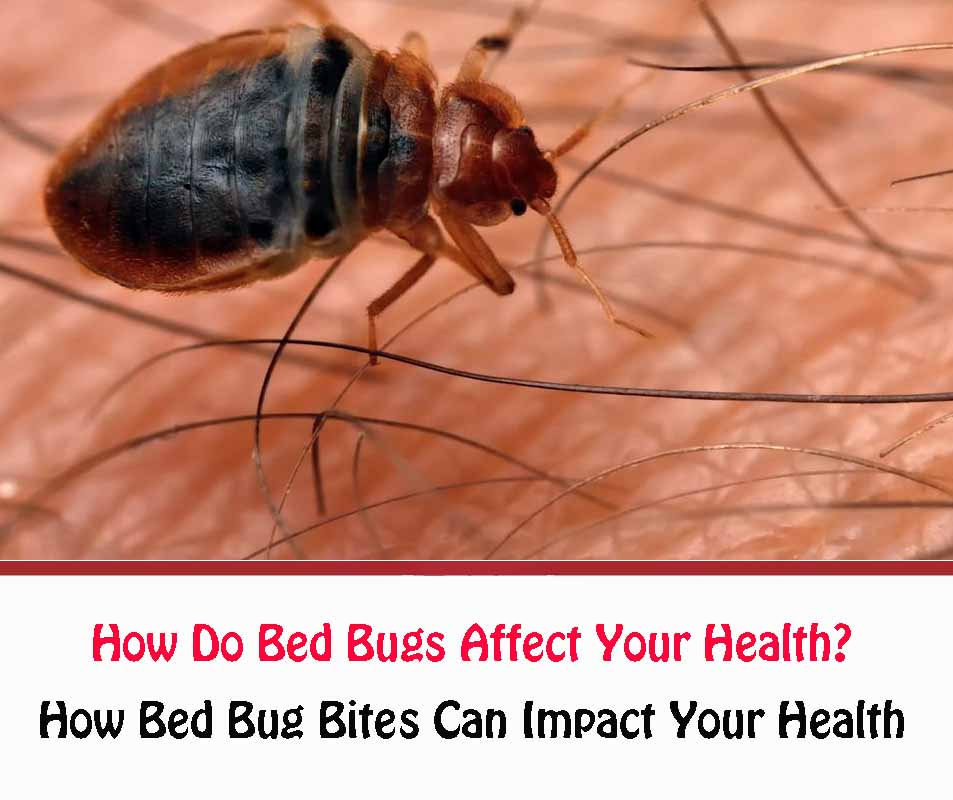 How Do Bed Bugs Affect Your Health